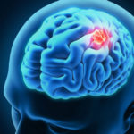 Brain Cancer : The Causes and Treatments